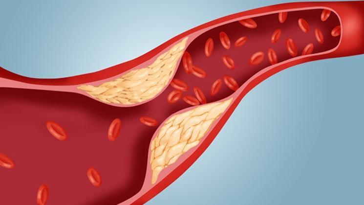 Colesterolo totale
